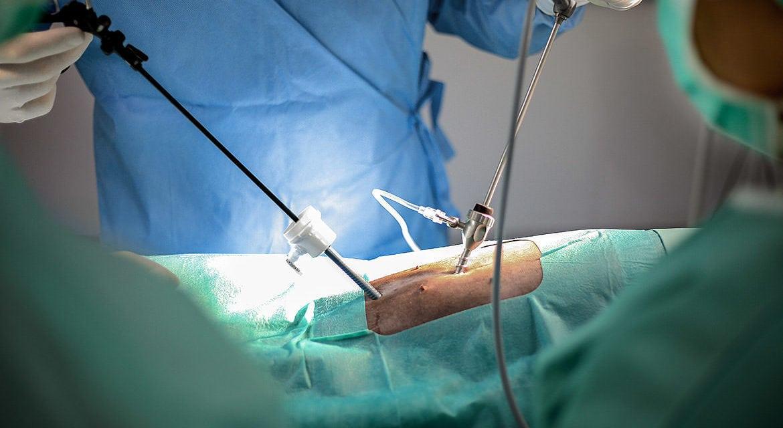 Endoskopische Kastration per Schlüsselloch-OP – weniger Schmerz dank moderner Operationsmethode
