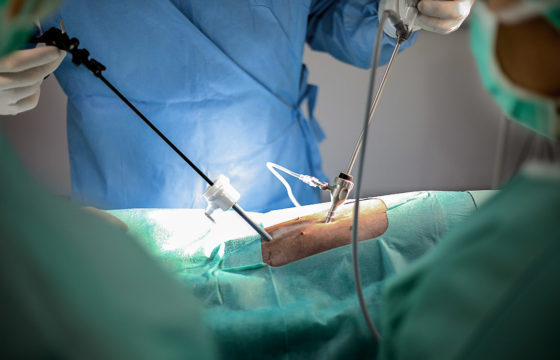 Laporoskopie